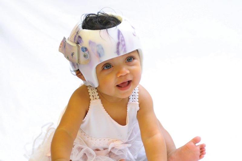 Cabeça torta: Saiba mais sobre assimetrias cranianas em bebês