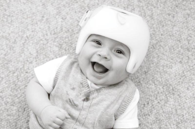 assimetrias-cranianas-em-bebês-