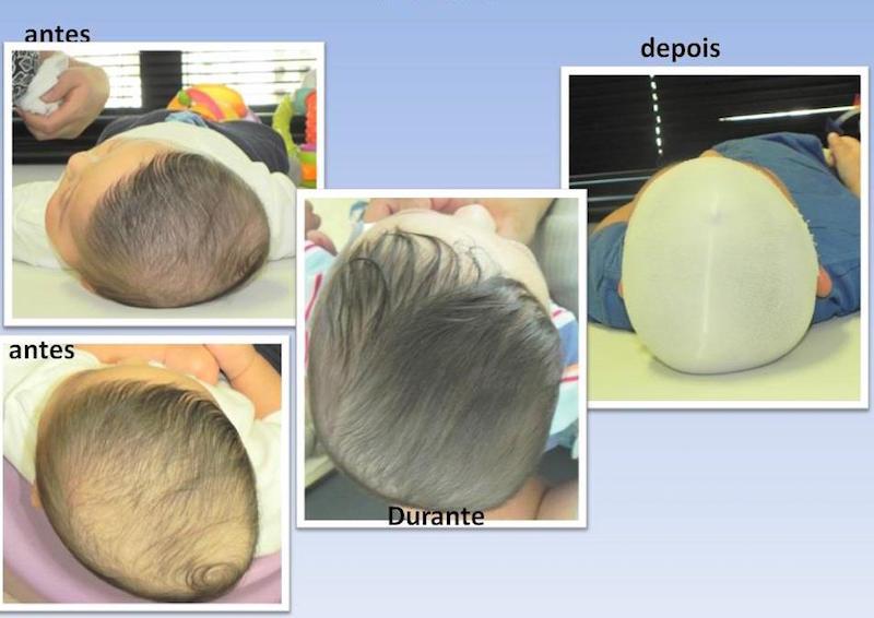 assimetrias-cranianas-em-bebês-antes e depois