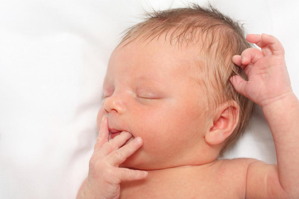Icterícia em bebês, o que é e como tratar?