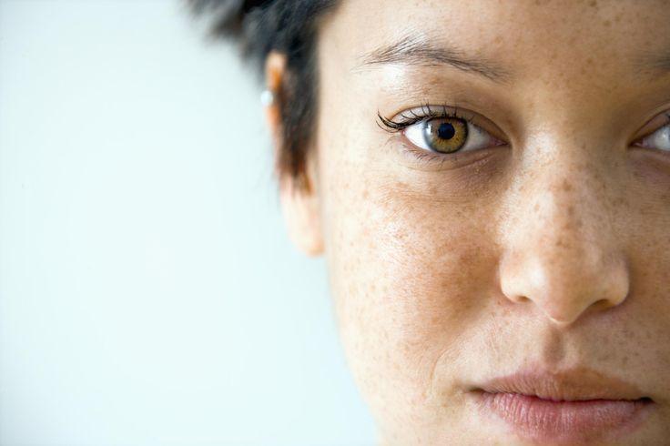 Gravidez e o Melasma – Cuidados com a pele