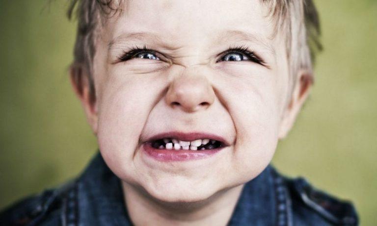 Bruxismo infantil: o que é e como tratar