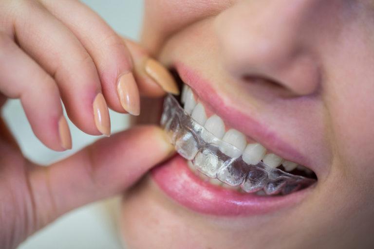 Aparelho ortodôntico transparente: Uma forma mais confortável das crianças tratarem seus dentes