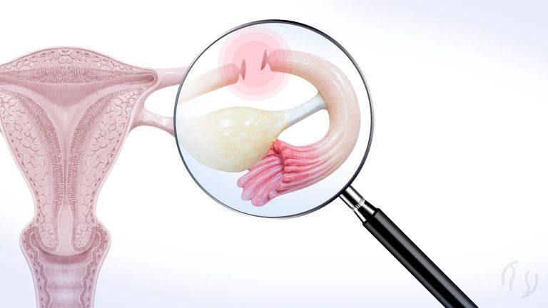 Laqueadura – como é o procedimento? recuperação e complicações